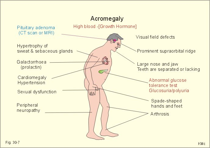 Acromegaly Nursing Care Plan Management Nursing Path
