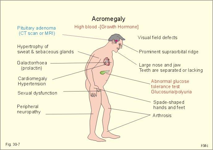 polypeptide hormones vs steroid hormones