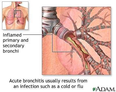 Acute Bronchitits