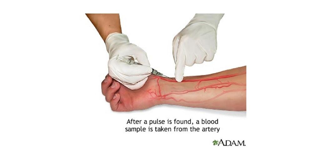 Arterial blood gas essay