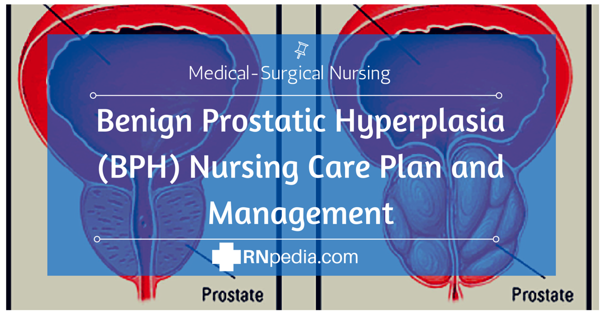 benign prostatic hyperplasia ncp Benign prostatic hyperplasia, or bph, also called benign prostatic hypertrophy or enlarged prostate, is a condition in which the size of the prostate gland is increased.