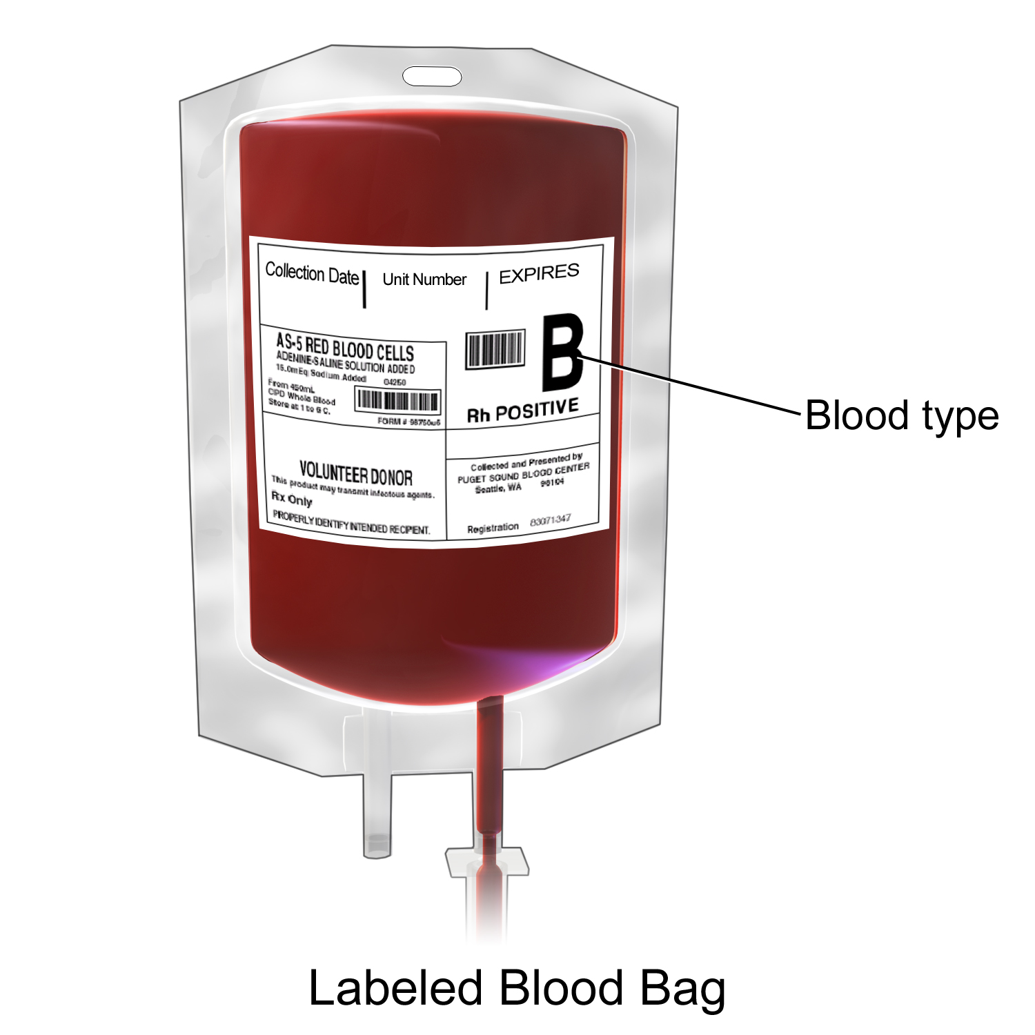 Blood transfusion therapy rnpedia
