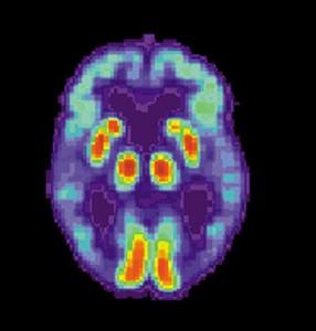 PET_Alzheimer