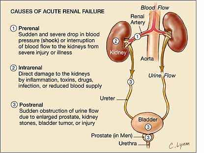 Acute Renal Failure Nursing Care Plan Management Nursing Path