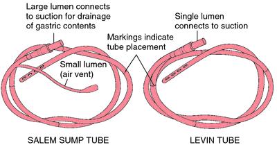 Nasogastric And Intestinal Tubes Rnpedia