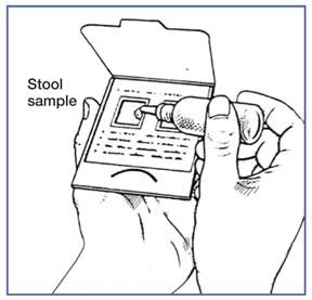 Fecal Occult Blood Test Rnpedia