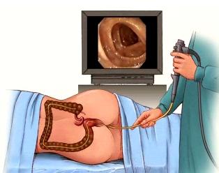 Colon Polyp Photograph by Gastrolab  |Abnormal Colonoscopy