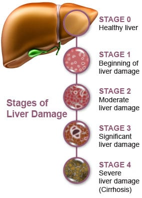 Hepatic Failure Nursing Management - RNpedia