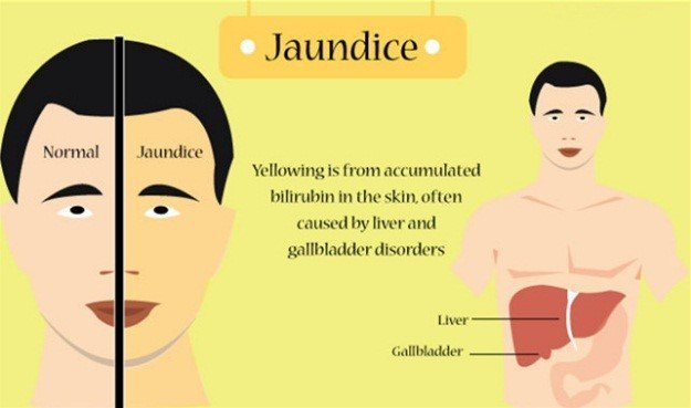 Jaundice Nursing Management