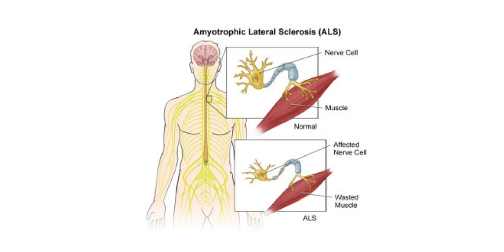 Amyotrophic Lateral Sclerosis (ALS) Nursing Care Plan & Management ...