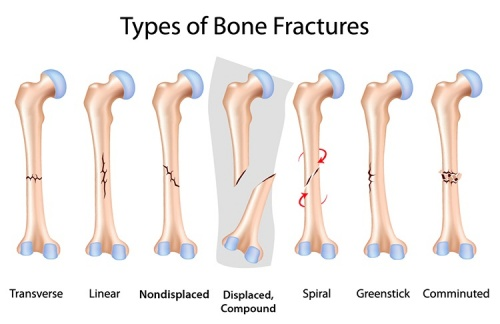 fractures nursing care plan & management - rnpedia, Human Body