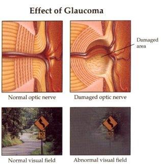 Glaucoma Nursing Care Plan Amp Management Rnpedia